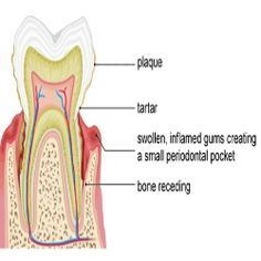 Top 5 Home Remedies For Gum Disease