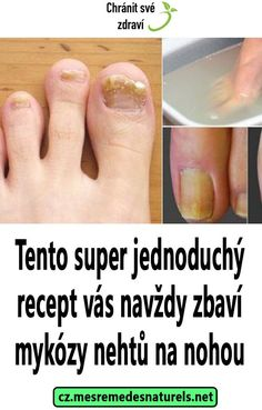 Tento super jednoduchý recept vás navždy zbaví mykózy nehtů na nohou Health And Wellness, Health Care, Health Fitness, Fancy Desserts, Herbalism, Detox, Beauty Hacks, Herbs, Diy Fashion