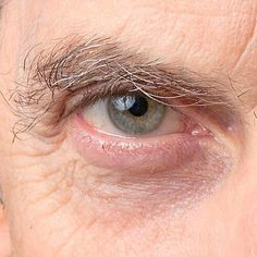 Focus on the beautiful eye colour...Peter has heterchromia, lack of melanin in the skin, which causes the eyes to look different colours in different lights.