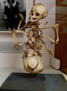 Fetal Conjoined Twins Skeleton    At the Warren Anatomical Museum in Boston, MA