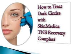 How to treat dark circles with skin medica tns recovery complex