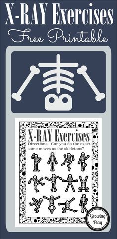 X-Ray Exercises - get moving and grooving like a skeleton for pretend play fun or Halloween time brain break. Free from Growing Play.