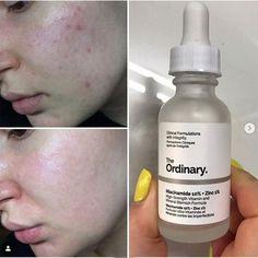 The Ordinary Niacinamide 10 Zinc 1 30ml High Mineral Essence Regulates Sebum And Minimizes Pores Makeup P The Ordinary Niacinamide Face Serum Skin Blemishes