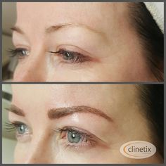 Semi-Permanent eyebrows using a microblading hairstroke technique to create natural looking brows