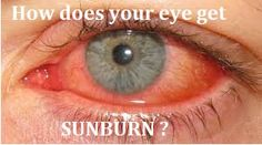 Can Your Eyes Get Sunburn?Read about the Symptoms , Cause and Prevention . - Improving your life health and family