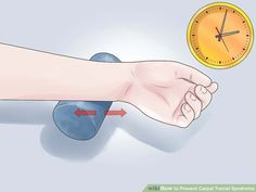 Image titled Prevent Carpal Tunnel Syndrome Step 16