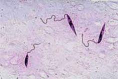 Leishmania braziliensis
