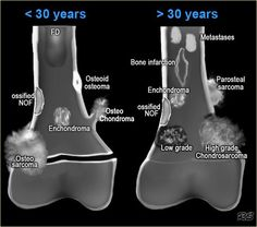 Bone Tumors - location & age