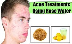 Natural Acne Treatment The best acne treatment http://theacnecode.com #naturalskincare #healthyskin #skincareproducts #Australianskincare #AqiskinCare #SkinFresh #australianmade