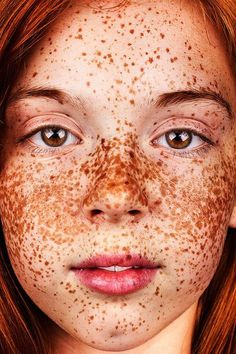 """Photographer Brock Elbank has sought out """"incredible-looking humans"""" for his photo project #Freckles."""