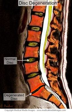 Color MRI Medical Image showing Disc Degeneration at the lowest Spinal Disc of the Lumbar Spine (Low Back). Created by Medical Media Images. Ideal for Websites and Publications. http://www.medicalmediaimages.com/annotated-color-mri-lumbar-spine-anatomy-disc-degeneration/531