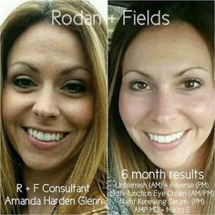 Your skin doesn't have to be 'bad' to be able to see an improvement with R+F products. Check out Amanda's results... she is GLOWING! I'd love to help get your glow back, too! Message me for 10% off, free shipping!! #rodanfields #getyourglowback