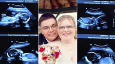 DOCTORS SHOCKED AFTER WOMAN GIVES BIRTH TO QUADRUPLETS AND THEY SEE THEIR FACES