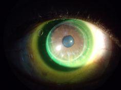 20.2 mm scleral lens on transplanted cornea.