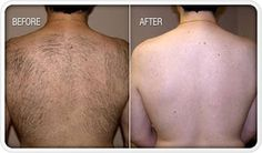 Best hair removal cream that works. Get rid of your unwanted hair painless and effortless at your home using the best hair removal cream on the market. Hair Removal Cream For Men, Permanent Hair Removal Cream, Best Laser Hair Removal, Laser Hair Reduction, Hair Removal Systems, Removal Services, Spa Services, Wellness, Unwanted Hair
