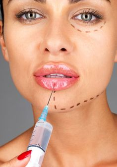 Lip Plumping Injections: Proven long-lasting