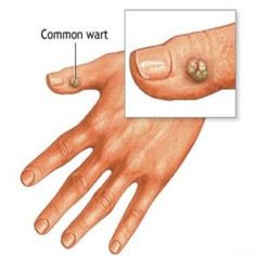 Effective Home Remedies for Wart removal