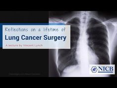 Biomedical Lecture: Reflections on a lifetime of lung most cancers surgical procedure Medical Pictures, Lung Cancer, Lunges, Surgery, Clinic, Reflection, Videos, Youtube, Video Clip