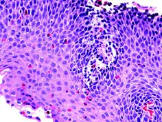 Eosinophilic esophagitis: squamous esophageal epithelium infiltrated by numerous eosinophils, up to 60 per high power filed. Basal layer hyperplasia and elongated papillae are also present.