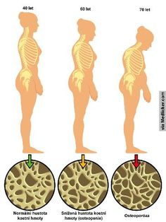 Many menopause age women suffer from the symptoms of osteoporosis! Learn about the causes of osteoporosis and get tips for prevention and treatment today! Kyphosis Exercises, Osteoporosis Exercises, Posture Exercises, Young Living Oils, Young Living Essential Oils, Arthritis, Benefits Of Strength Training, Musculoskeletal System, Bones