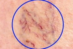 The Best Home Remedies to Get Rid of Spider Veins: May 2015 Beauty ~ What are spider veins? Spider veins, medically known as telangiectasias or angioectasias, are similar to varicose veins, but smaller. These tiny veins, found close to the surface of Get Rid Of Spider Veins, Get Rid Of Spiders, Spider Webs, Varicose Vein Remedy, Varicose Veins, Natural Home Remedies, Natural Healing, Health And Beauty Tips, Health Tips