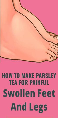 This Tea is The Ultimate Remedy For Swollen Feet - zahnweiss Natural Health Remedies, Natural Cures, Herbal Remedies, Cold Remedies, Wellness Fitness, Fitness Diet, Health And Wellness, Natural Beauty Tips, Health And Beauty Tips