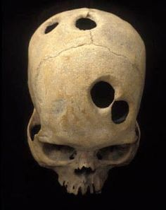 Ancient Cranial Surgery: Practice of Drilling Holes in the Cranium That Dates Back Thousands of Years Crane, Graffiti 3d, Creepy History, Curious Facts, Skull Island, Macabre Art, Human Skull, Skull And Crossbones, Ancient Aliens
