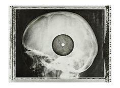 Grupos de jovens soviéticos pirateavam discos de rock em chapas de raio-x nos anos 50