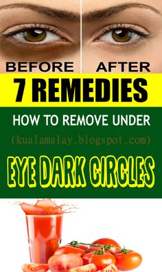 Under our eyes seem dark circles that can be exceptionally disappointing and it all the time because of weakness thus, having a decent eight hour rest each night can help you how to evacuate under eye dark circles.