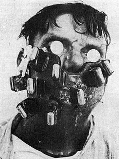 100 Years Ago Today - a cancer patient using a radium mask to treat cancer of the face and neck - creepy Vintage Medical, Medical History, Medical Science, Macabre, Old Photos, The Past, 1920s, Ahs Asylum, Real Horror