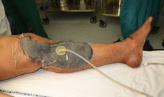 The Global Negative Pressure Wound Therapy (NPWT) Market is Anticipated to be Valued at USD 2.56 Billion by 2023