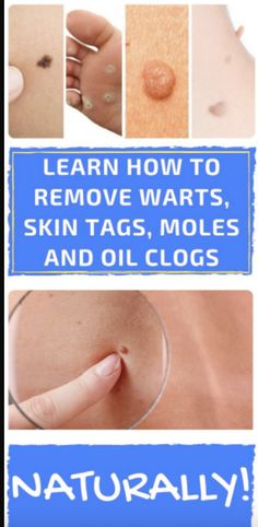 LEARN LEARN HOW TO REMOVE WARTS, SKIN TAGS, MOLES AND OIL CLOGS NATURALLY! – Toned Chick