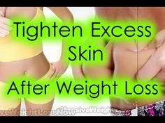 How To Achieve Weight Loss Extra : How to Tighten Excess Skin After Weight Loss
