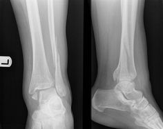 Trimalleolar fracture of ankle: Cotton #