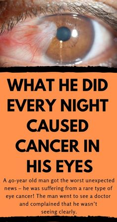 What he Did Every Night Caused Cancer in His Eyes And he Died! Make Sure You Don't Do This Every Day! - YOUR HEALTH