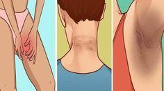 Las manchas oscuras aparecen generalmente en el cuello, las axilas y muslos internos, debido a la depilación, afeitado, uso de desodorantes e incluso la exposición al sol.