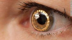 Contact lens with built-in telescope could help people with blinding disease