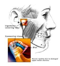 Best natural cures for TMJ disorders. Learn more about the best treatment options like night guards, massage and physical therapy. Get Whiter Teeth, Jaw Pain, Facial Muscles, Oil Pulling, Whitening Kit, Teeth Cleaning, Organic Oil, Oral Health, Massage Therapy