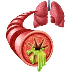 Asthma is a serious condition that can be dangerous when a person was under asthma attack. It is a lung disease cause by the production of excess mucus Bronchitis Remedies, Acute Bronchitis, Natural Asthma Remedies, Home Remedies, Chest Congestion, Respiratory System, Allergies, How To Find Out