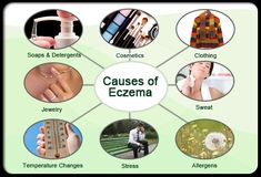 Eczema (Atopic Dermatitis) is a common allergic skin condition. Get the latest information on causes of eczema and skin rash symptoms. Find treatments for eczema as well as seborrheic dermatitis and more. Nummular Eczema, Eczema Causes, Eczema Symptoms, Contact Dermatitis Treatment, Vitiligo Treatment