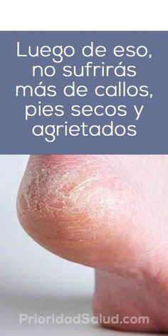 Remedios para pies secos y agrietados, callos, pies de atleta. #pies #remedioscaseros