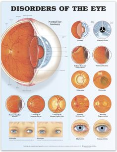 Disorders Of The Eye Infographic: I find this particularly useful when talking to an optometrist about eye exams.