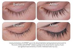b39b3094ea0 #Latisse Check out a Before and After of eye lashes when you use Latisse.
