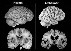 Amostras dos cérebros de quatro senhoras que morreram em São Paulo contam mais sobre a complexidade do Alzheimer. Apesar do amontoado de placas e emaranhados de proteínas típicos dos estágios avançados da doença, elas viveram assintomáticas. Os cérebros de quatro senhoras com idades entre 80 e 82 anos que morreram em São Paulo contam um … Leia mais