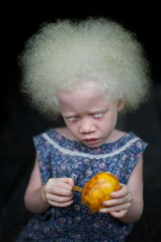 A lovely girl with albinism on the northern rim islands of Papua New Guinea  