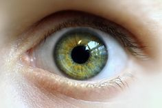 Heterochromia . . . green and yellow, probably partial sectoral.