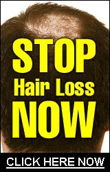 (adsbygoogle = window.adsbygoogle || []).push({}); How To Grow Long Hair Fast Naturally At Home If you are battling with hair loss and want to know