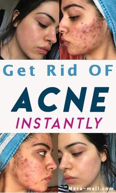 Treating acne and its stubborn scar is not an easy task; However, we all are pretty much aware that most medicines for acne scar removal are available at local medicine shops. Acne Scar Removal Treatment, Scar Removal Cream, Natural Acne Treatment, Cystic Acne Treatment, Scar Cream, Cream Cream, Acne Spots, Remove Acne, Natural Treatments