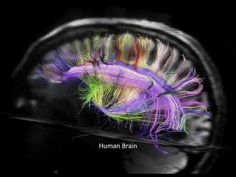 Great visual concept art for the Muse Universe map....  New Discoveries in Brain Structure and Connectivity