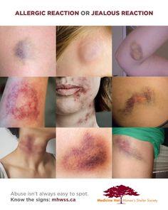 'Ciúmes ou reação alérgica?' questiona peça contra violência doméstica